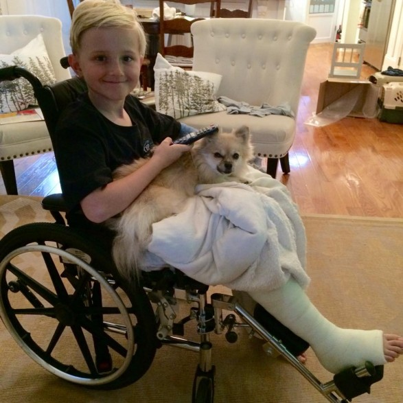 zephan broken leg